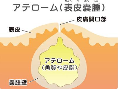 アテローム(表皮嚢腫)