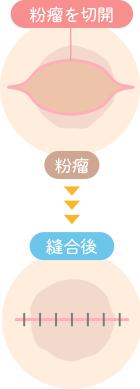 一般的な粉瘤の手術