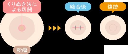 めぐみクリニックの粉瘤の手術